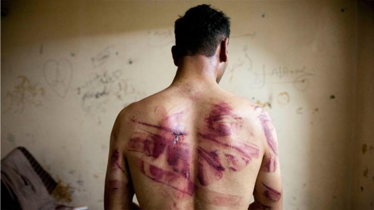 ضحية تعذيب من حلب. Foto: Getty Images/AFP/J. Lawler