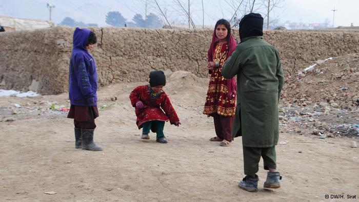 الجوع: أطفال كثيرون يعانون من الأمراض الناجمة عن سوء التغذية ونقصان الفيتامينات الأساسية