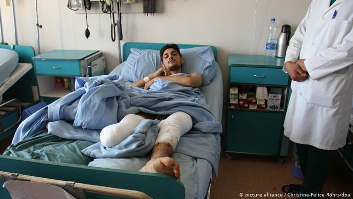 معاناة أفغان مصابين جنود سابقين - مستشفيات أفغانستان  Afghanische Kriegsverletzte  Soldaten leiden Krankenhäuser in Afghanistan Foto dpa