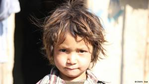 الفقر:تعتبر أفغانستان من أفقر بلدان العالم منذ عقود. فنحو 36 في المئة من السكان تحت خط الفقر، وفقا لوزارة الصحة الأفغانية. علاوة عن الأخطار الأمنية التي تهدد حياة السكان بسبب الحرب المستمرة في البلاد. وهي حرب تسفر عن تهجير أناس كثيرين من مناطقهم الأصلية. والنتيجة: معاناة أسر كثيرة من الجوع الذي يهدد صحة الأطفال.