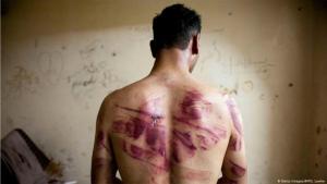 صورة رمزية..التعذيب من الأسد. الصورة، غيتي اميجيز وأ.ف.ب